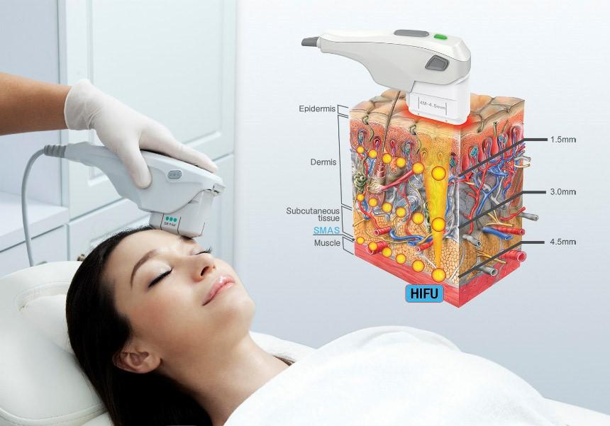 A 3D HIFU mikrofókuszált ultrahangos kezelés jelentős fiatalodást eredményez, leállítja egy időre az öregedést, majd késlelteti az öregedési folyamatot.